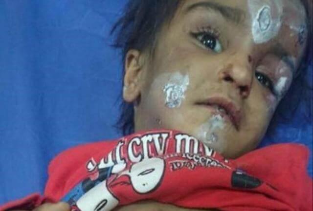 ماجرای شکنجه ستایش سه ساله در رفسنجان توسط پدر و مادرش+عکس