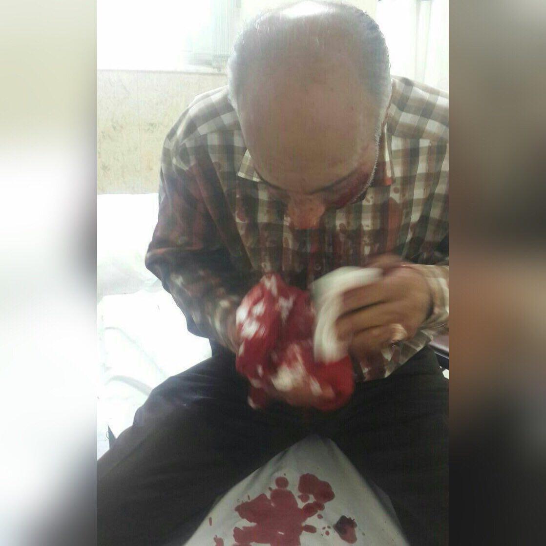 مجروح حادثه تروریستی امروز