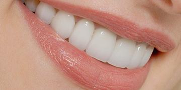 5 روش برای رفع زردی دندانها