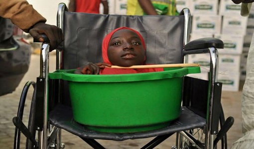 داستان دردناک دختر ۱۹ ساله ای که تمام عمرش را در داخل یک سطل سپری کرد