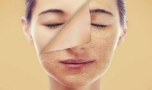 چطور در زمستان از خشک شدن و خارش گرفتن پوست خود جلوگیری کنیم؟
