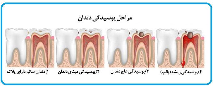 از پوسیدگی دندانهایتان جلوگیری کنید