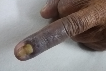 سیاه شدن پوست و ناخن بیماران دیالیزی