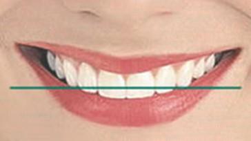 طراحی لبخند