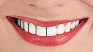 طراحی لبخند - متخصص دندانپزشکی زیبایی