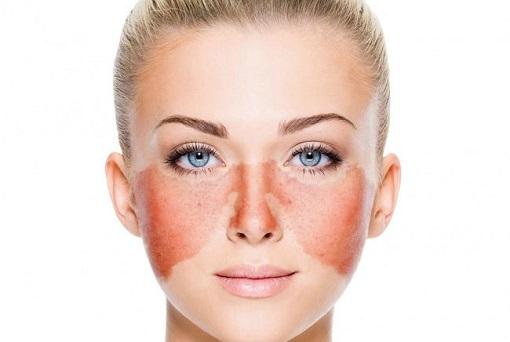 ۱۱ بیماری پوستی معمول که از وجود مشکل در بدنتان خبر می دهند
