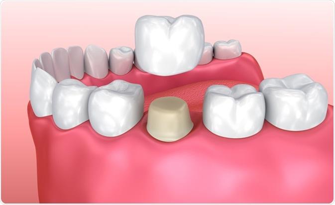 حساس شدن دندان و روکش