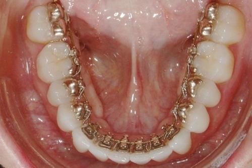 براکت پشت دندانی چیست