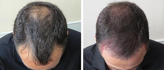 کاشت مو - ترمیم مو - پیوند مو - کاشت ابرو - کاشت موی طبیعی - کلینیک کاشت مو