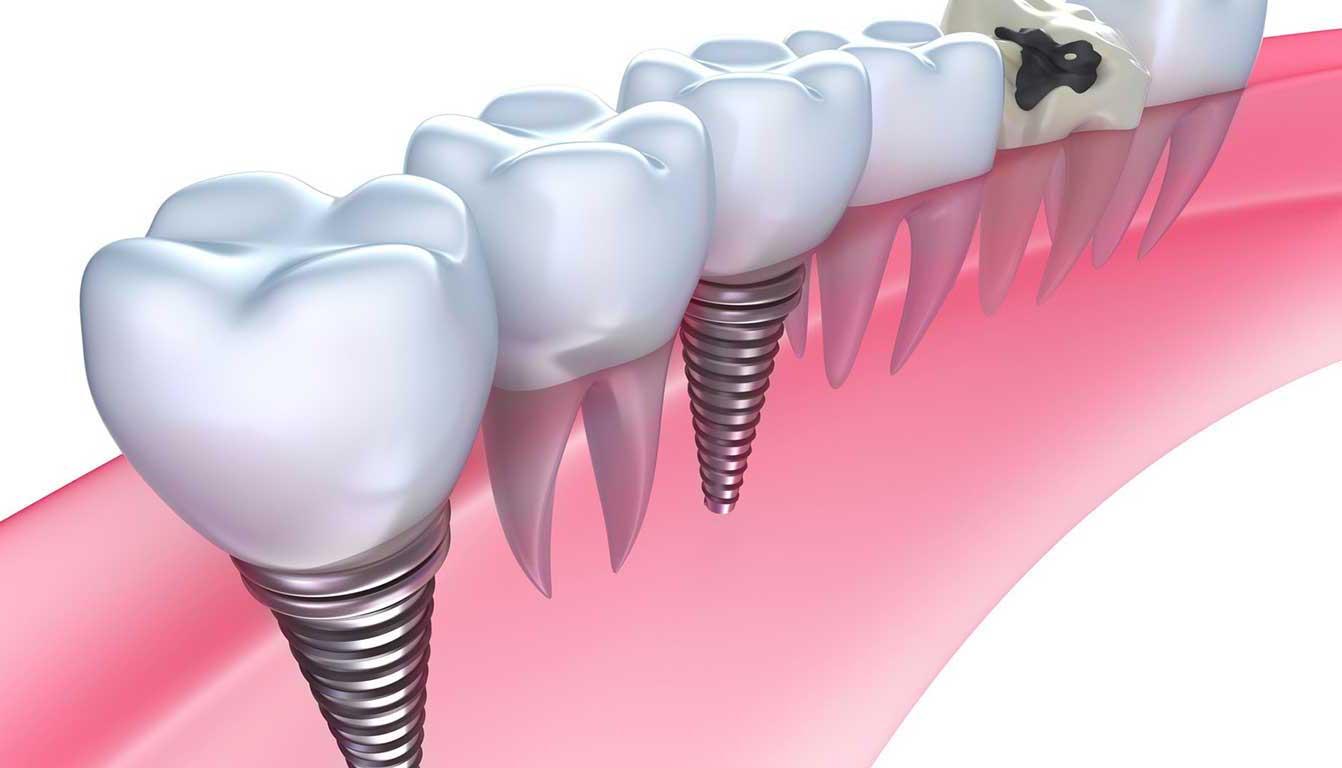 بهترین متخصص ایمپلنت دندان در تهران
