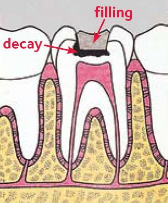 ایجاد پوسیدگی در زیر پرشدگی دندان