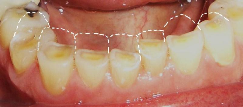 به هم فشار دادن فکها و دندان قروچه