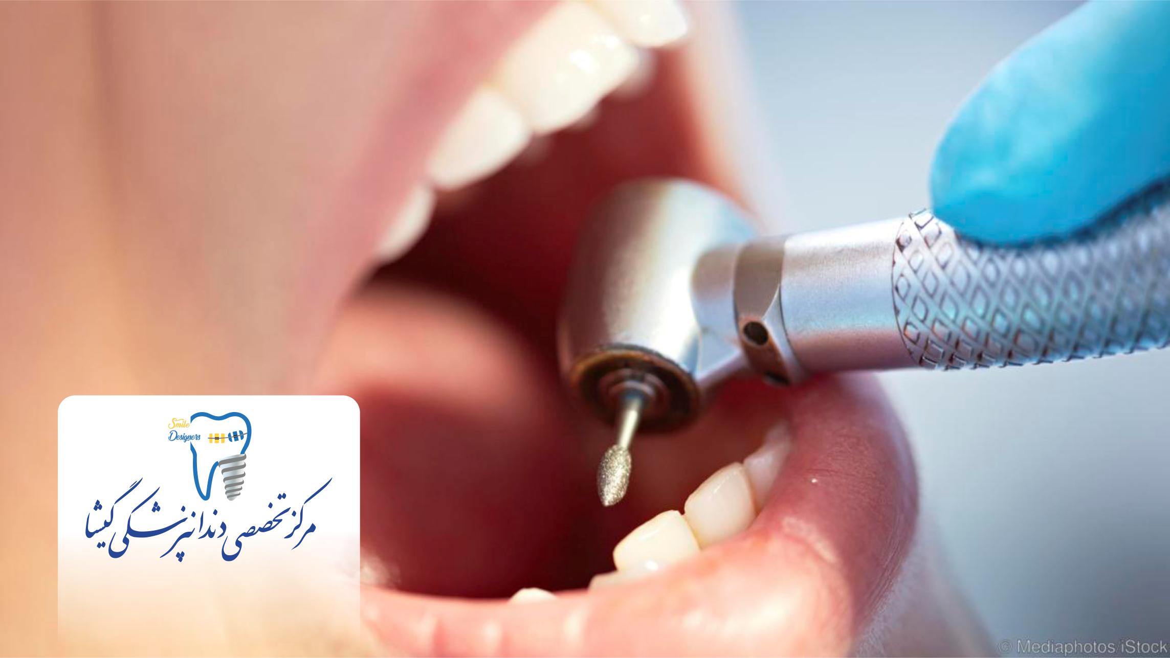 استفاده از بهترین تجهیزات در کلینیک دندانپزشکی گیشا