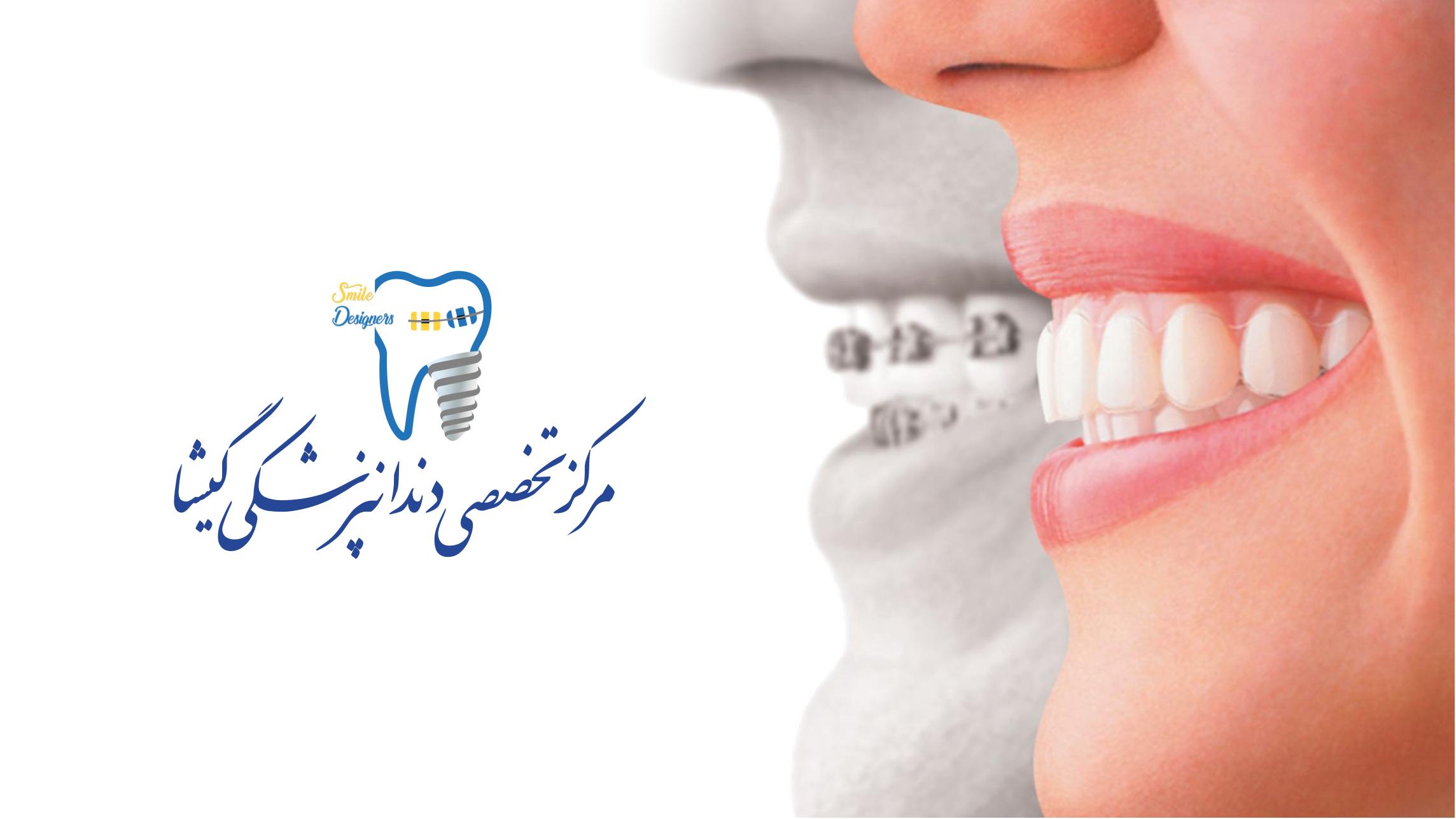 بهترین کلینیک دندانپزشکی زیبایی در تهران