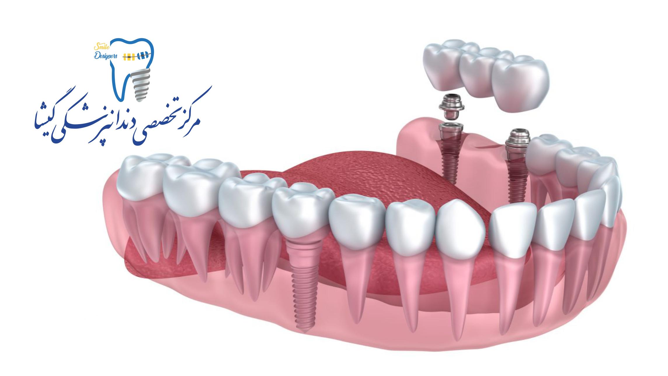 ایمپلنت دندان به صورت قسطی در کلینیک دندانپزشکی گیشا