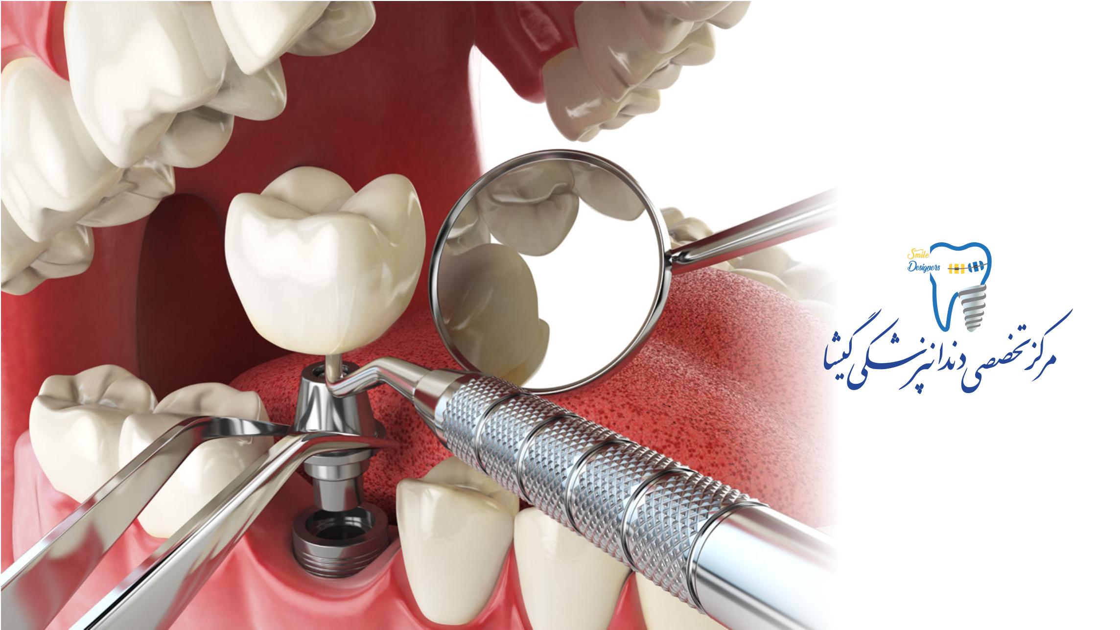 بهترین متخصص ایمپلنت دندان تهران دکتر گشاده رو