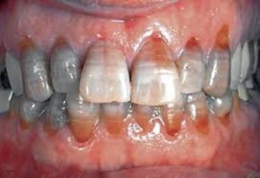 نمای کلینیکی تغییر رنگ دندانی ناشی تتراسایکلین