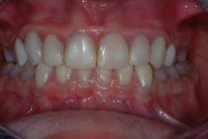 درمان دنتینو ژنزیس ایمپرفکتا توسط متخصص پروتزهای دندانی و ایمپلنت