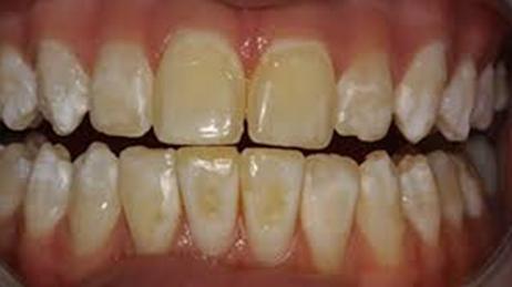 مشکلات مادرزادی تغییر رنگ دندانی