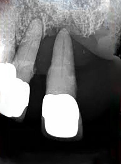 تحلیل رفتگی استخوان فک