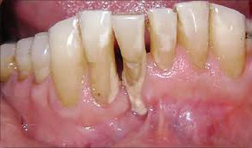 درمان بیماری های لثه پیش از کاشت دندان