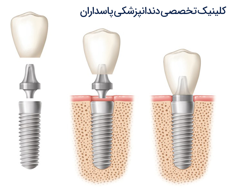 مراحل کاشت دندان