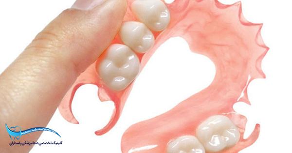 هزینه ساخت پروتزهای دندانی و دندان مصنوعی