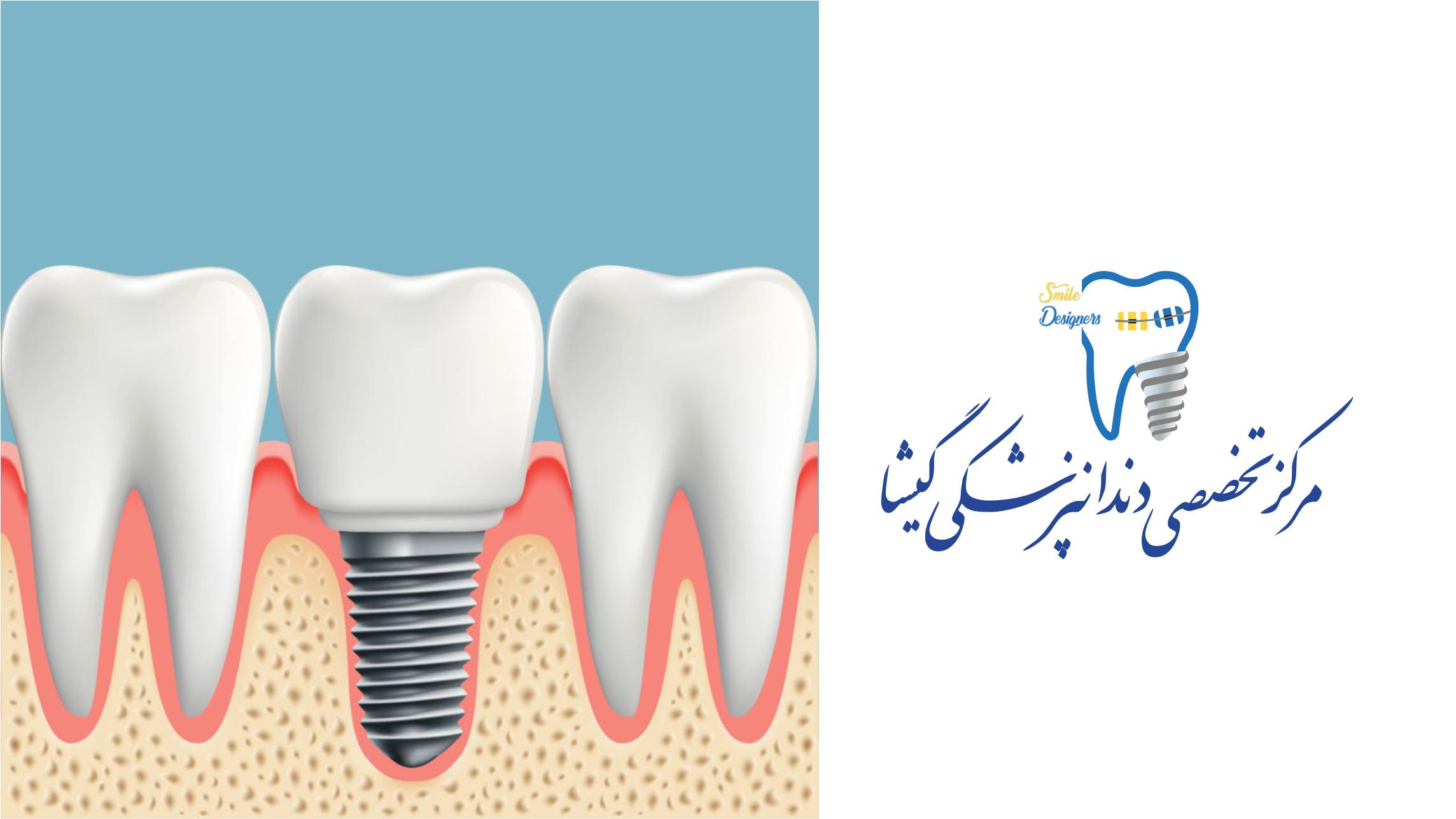انجام کاشت ایمپلنت دندان بهد صورت قسطی توسط بهترین متخصص ایمپلنت دندان