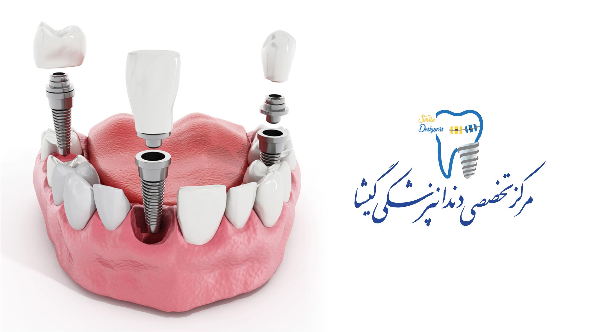 یهترین متخصص ایمپلنت دندان