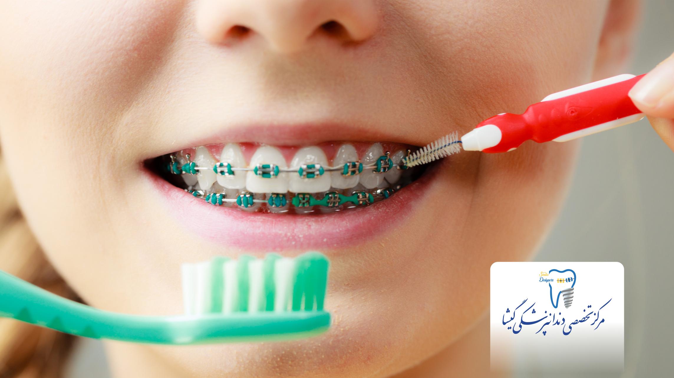 بهداشت دندانی در درمان ارتودنسی
