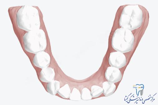 بهم ریختگی دندانها