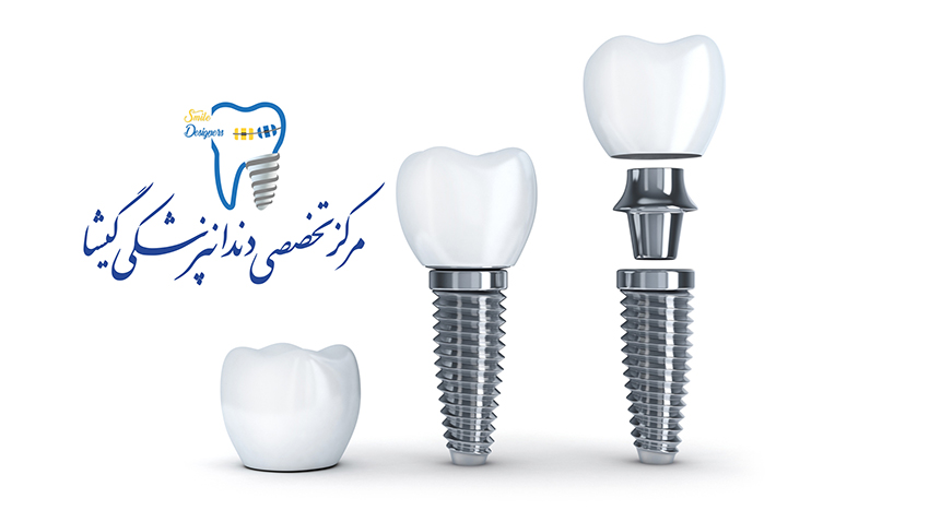 ایمپلنت فوری دندان - بهترزین متخصص ایمپلنت
