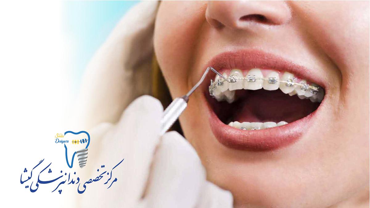 پر کردن دندان با ارتودسی