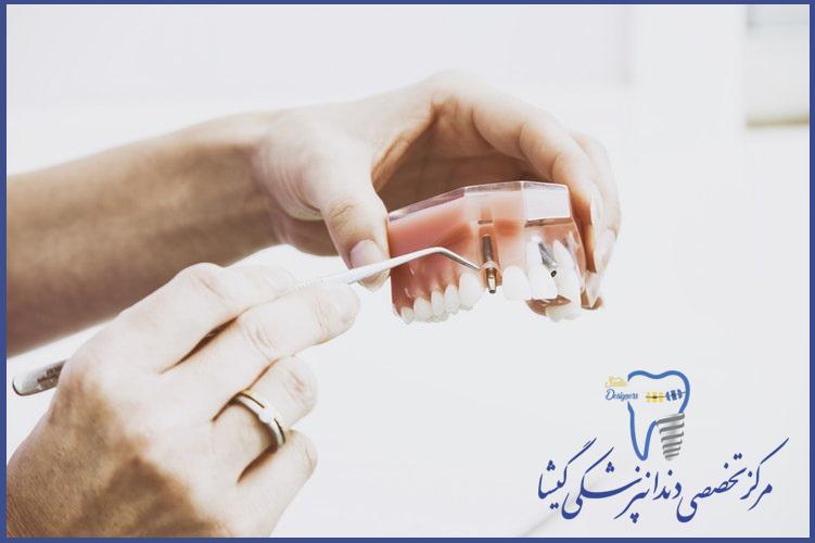 بهترین متخصص ایمپبنت دندان برای جراحی کاشت ایمپلنت دندان