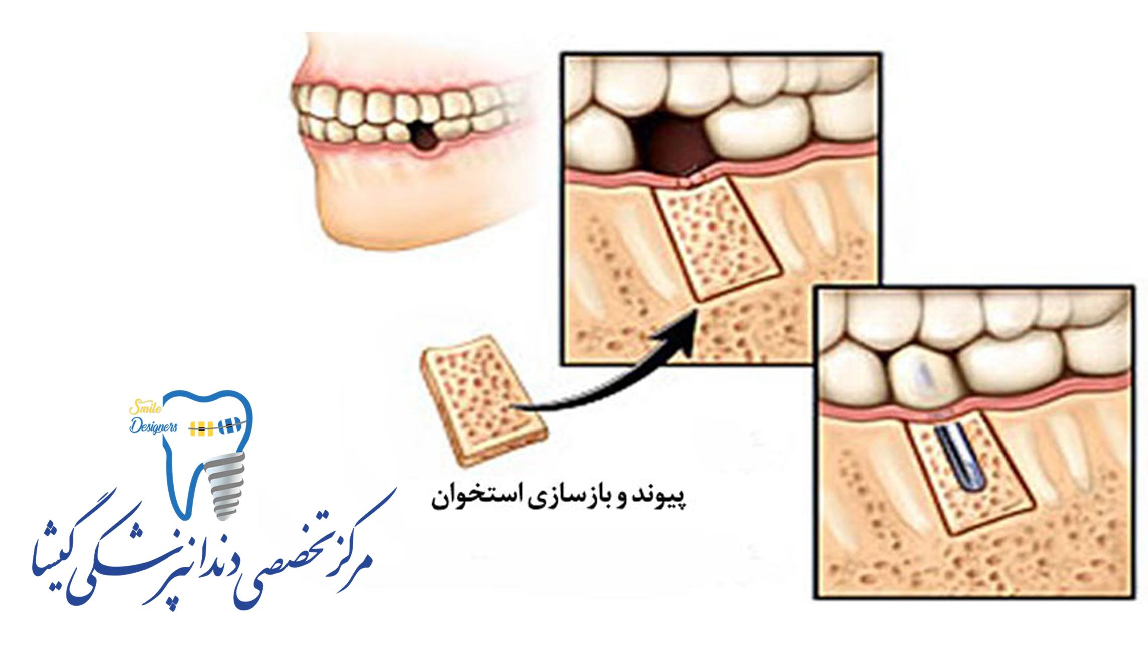 پیوند استخوان برای ایمپلنت دندان