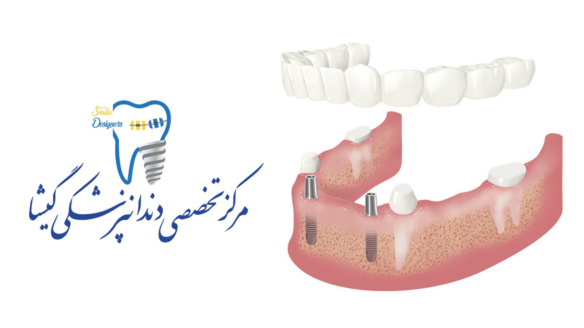 اوردنچر - ایمپلنت دندان