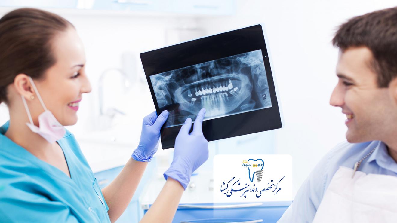 متخصص ایمپلنت دندان