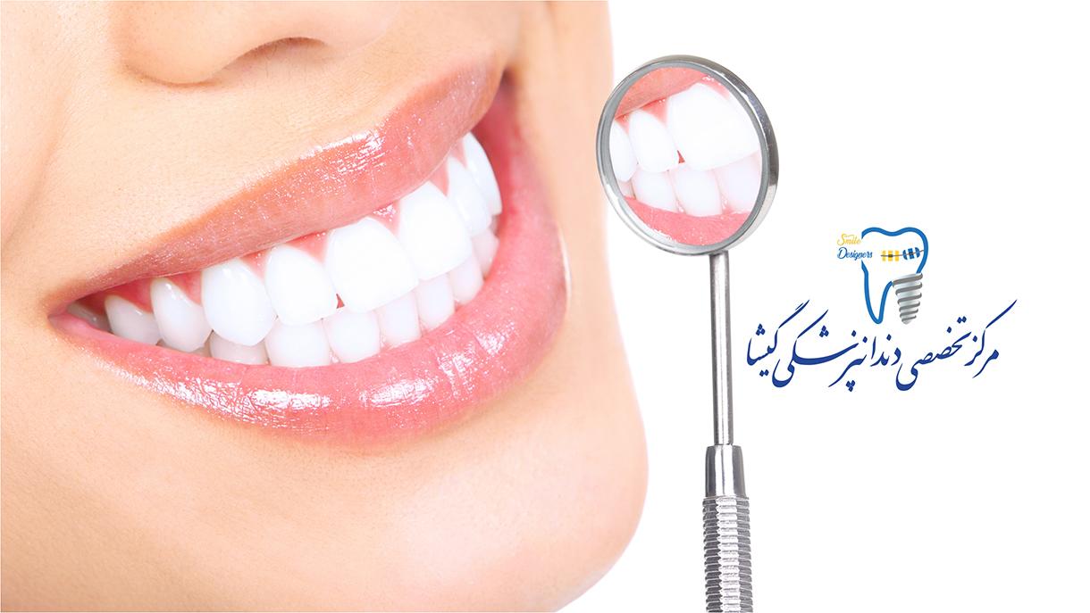 دندانپزشکی  زیبایی - طراحی لبخند