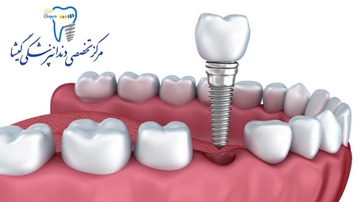 مزیت ایمپلنت دندان