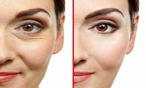 بوتاکس طبیعی پوست صورت
