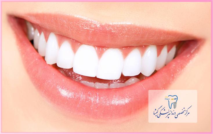 سفید کردن دندان ها - بلیچینگ