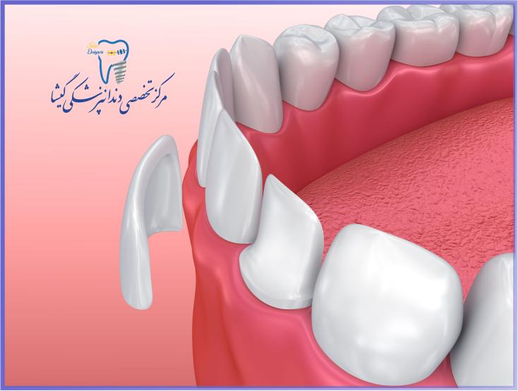 کاربردهای لمینیت دندان