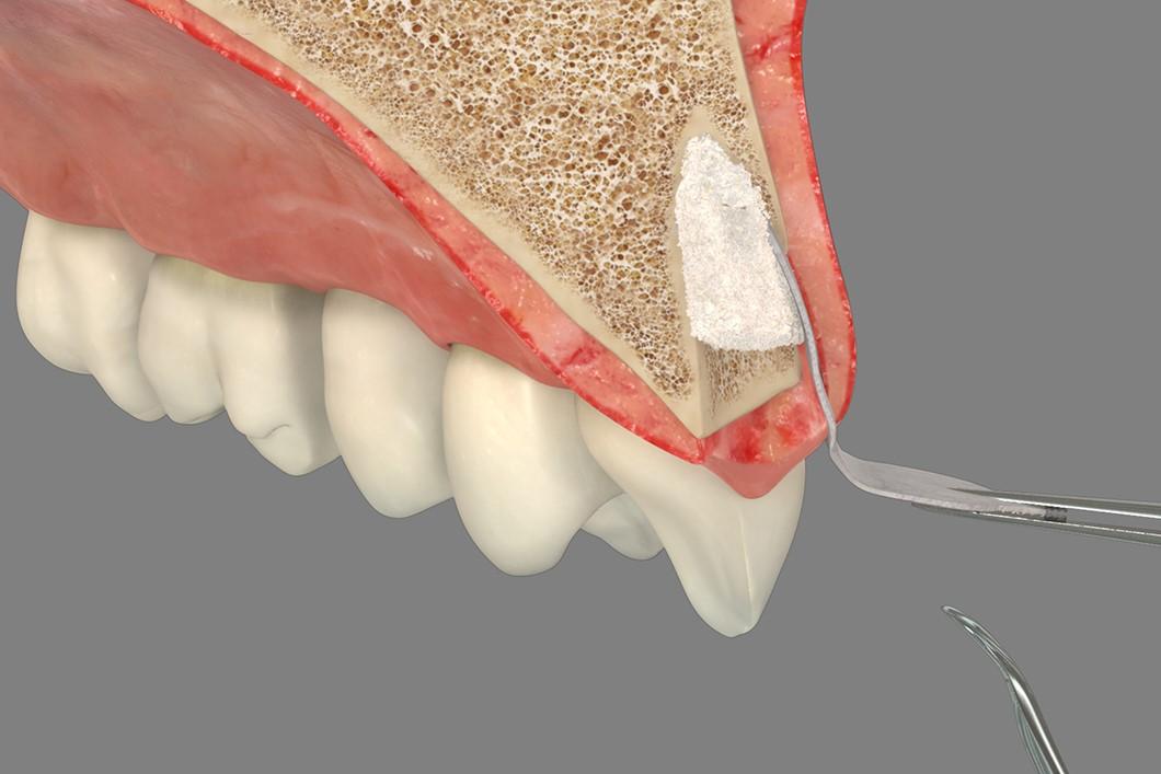 محافظت از ستیغ استخوان فک چیست؟